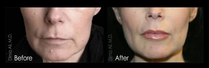 Restylane Lips B4 And After
