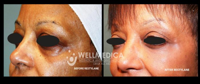 B4&after New Restylane 2