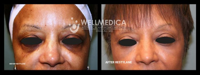 B4&after New Restylane 3