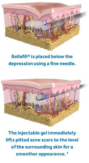 Bellafil Injections for Treating Acne Scars Dima Ali