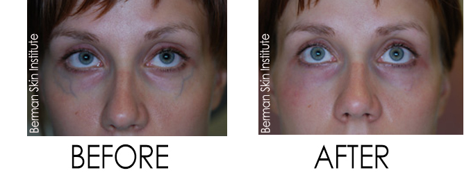 Blue Veins Under the Eyes Treatment Before and After