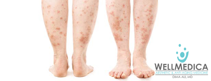 Treating the skin for fungal skin infections treatment