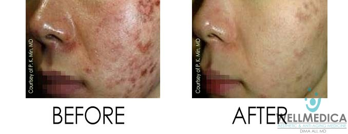 Dermatitis Treatment