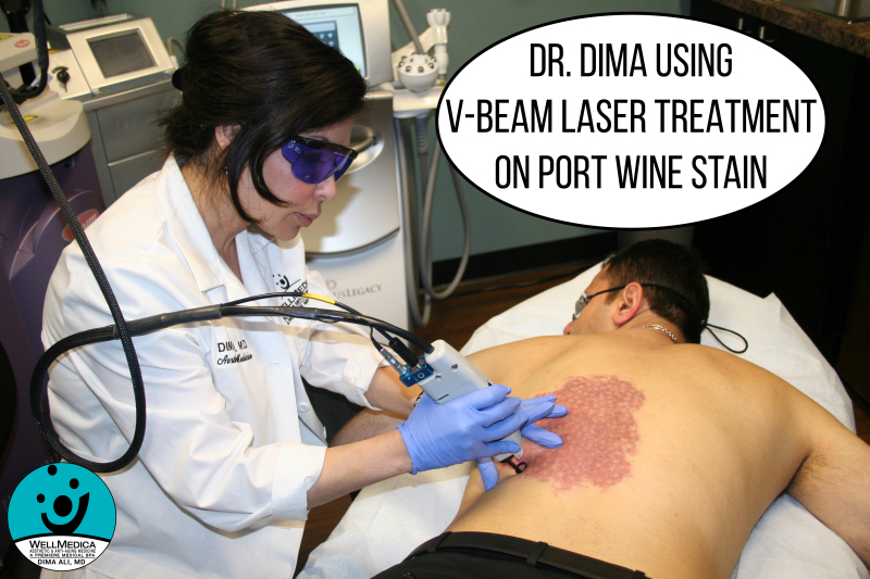 Dr. Dima using Vbeam candela to treat port wine stain