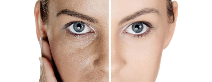 Enlarged Pores Treatment Before and After