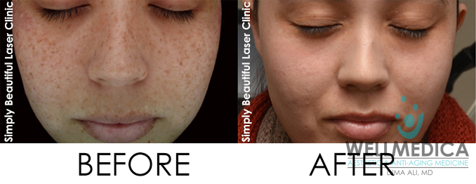Treating Freckles Before and After with Laser