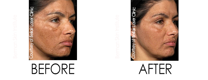 Skin Discoloration Melasma Treatment