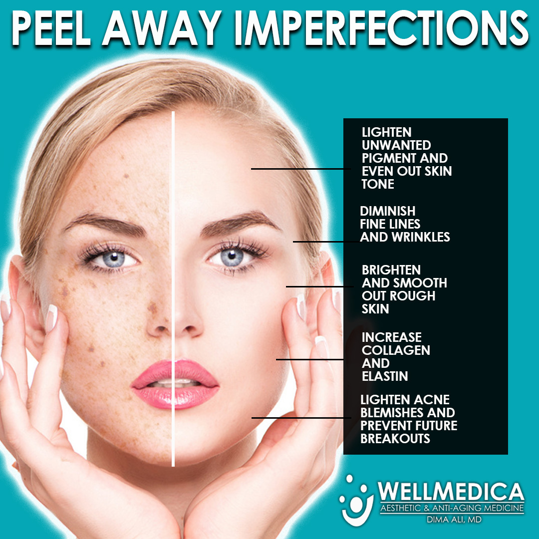 Chemical Peels to treat brown spots acne discoloration
