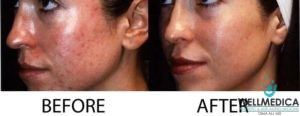 Photodynamic Therapy for Rosacea