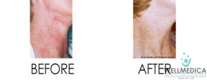 Skin Disorders Before and After