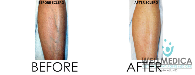 Sclerotherapy for vein removal