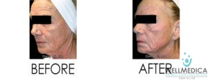 Treatment for Fine Lines and Wrinkles With Dr. Dima