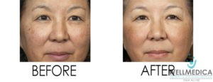 No Downtime Laser Peel for Photoaging