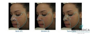 VISIA for Melasma