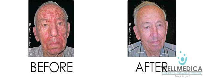 Skin Disorder - Actinic Keratosis - Before and After