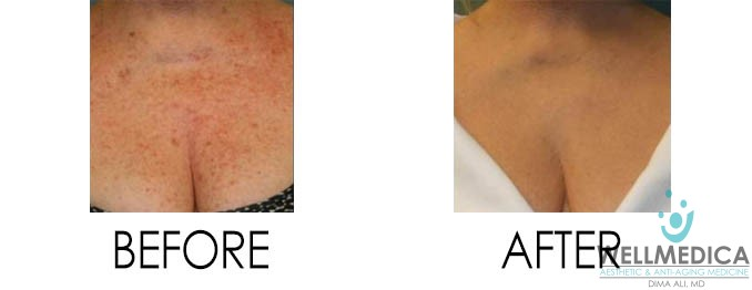 Sun Damage Before and After
