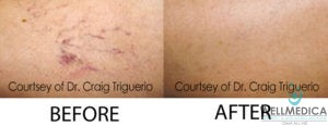 Veins Treatment Before and After