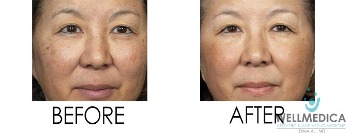 Vibradermabrasion for Brown Spots Dima Ali Before and After Brown Spots Reston VA