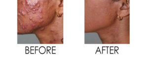 Smoothbeam Acne Therapy