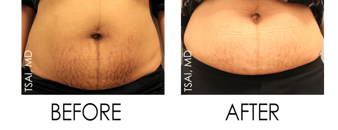 e-Matrix Before and After for Stretch Marks