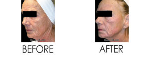 Venus Freeze and Venus Legacy for Skin Rejuvenation