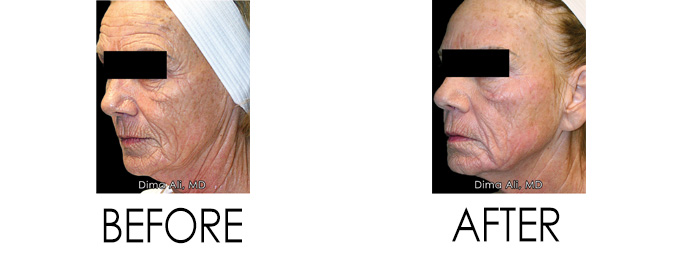 Aging Skin Before and After Dr. Dima