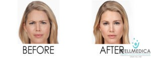 Botox, Before and After, Reston & Great Falls