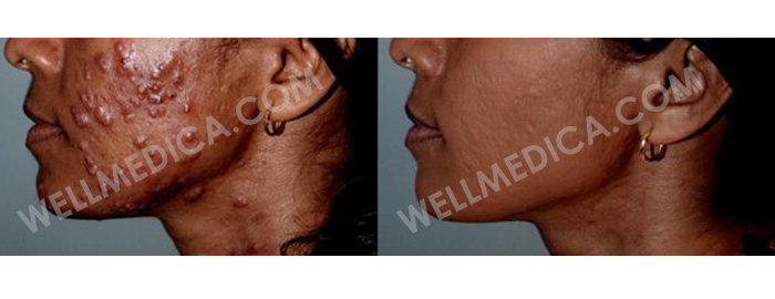 Treating Acne Scars and Pimples Skin Condition