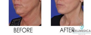 Face and Body Contouring