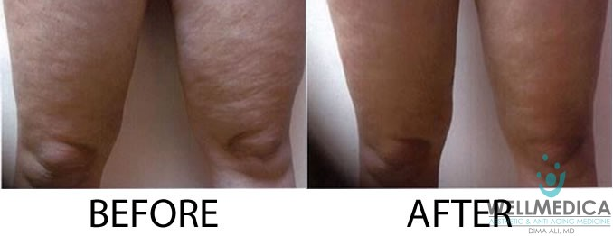 ThermiTight for Cellulite Treatment Results