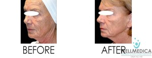Skin Tightening Before and After Reston