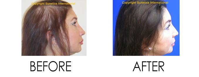 Hair Problems Before and After