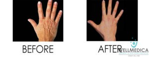 Venus Legacy for aging hands