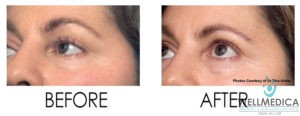 No Downtime Laser Peel for Crows Feet