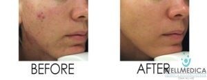 No downtime laser peel for hyperpigmentation