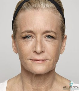 Dysport for Fine Lines and Wrinkles