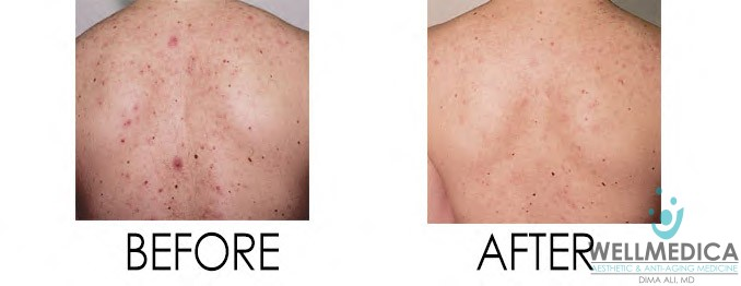 Vibradermabrasion for Bacne Before and After