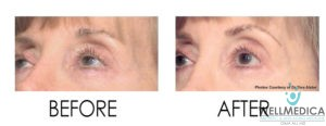 Smoothbeam-Collagen Stimulation for Facial Volume Loss