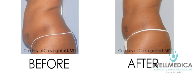 UltraShape Power for Excess Fat - Before and After