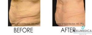 VelaShape III for Excess Fat
