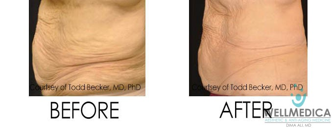 Sagging Skin Before and After