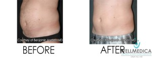 Excess Weight Loss Results Before and After