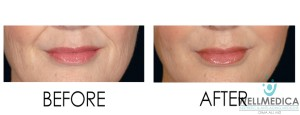 Facial Volume Loss before and after