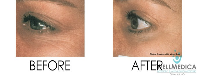 Dermal Fillers for crows feet