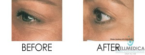Hollow eyes before and after treatment