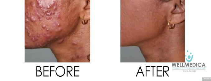 Laser treatment for acne removal