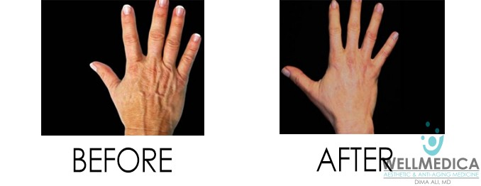 Venus Legacy for Aging Hands Before and After