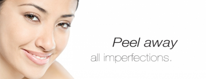 Chemical Peels for Scars
