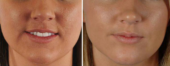 Vibradermabrasion for Sagging Skin and other skin conditions
