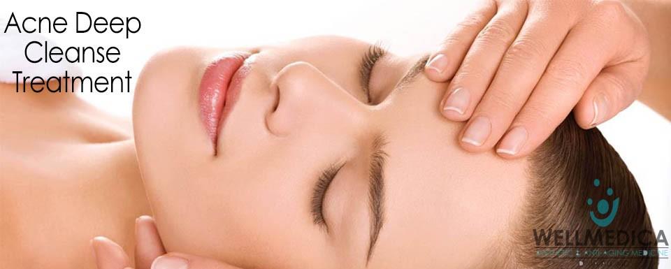 Acne Deep Cleanse Treatment Facial